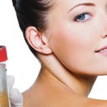 Tratamiento con plasta rico en plaquetas para dar luminosidad y uniformar la piel