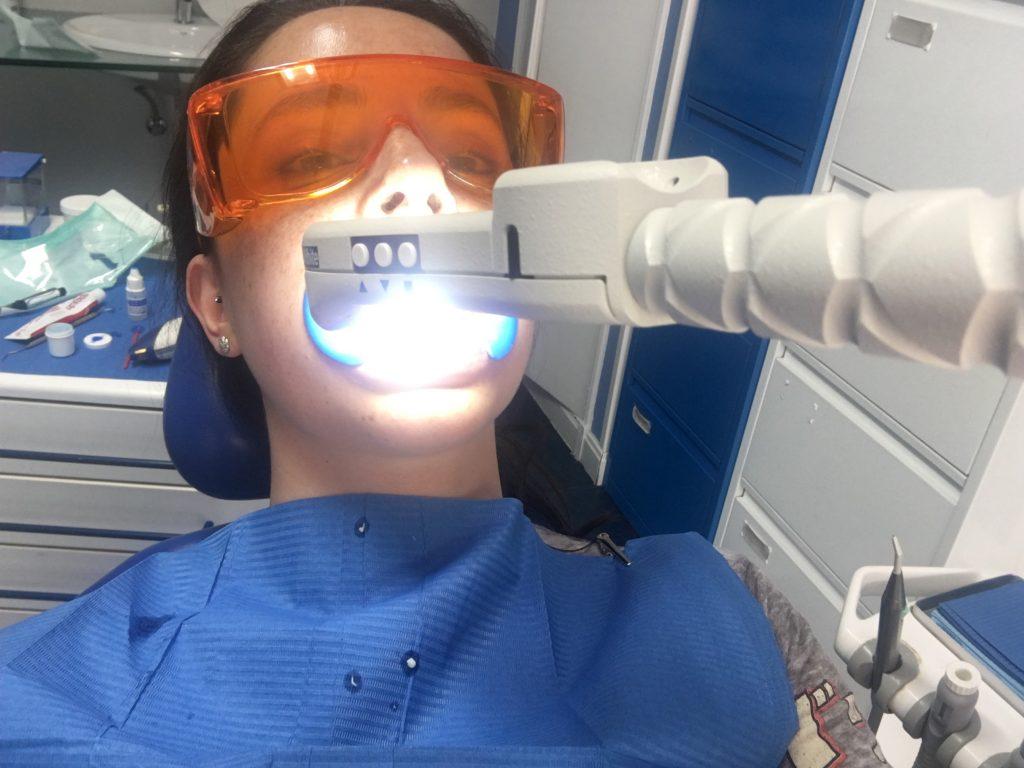Mi blanqueamiento dental en clínica
