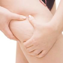 6 pasos naturales para eliminar la celulitis