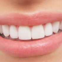 Mantén los dientes blancos